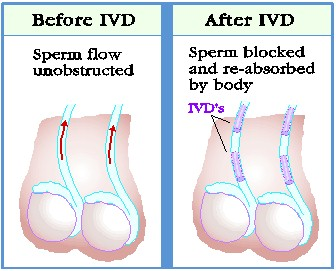 Male Scrotum Stretching Devices http://www.vasweb.com/IVD/IVD.htm
