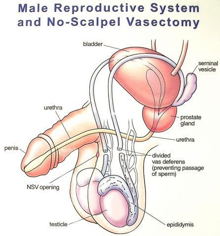 male reproductive system and vasectomy diagrams, Human Body